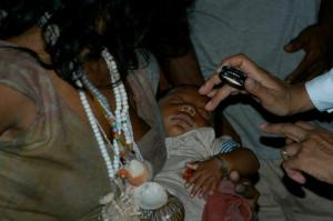 Brazil Baby Eye Exam